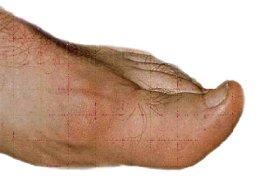 la carne de cordero es mala para el acido urico tratamiento de la gota aguda.pdf