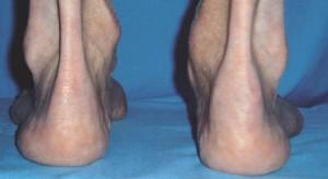 espondiloartropatia02