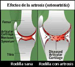 tratamiento_articular5