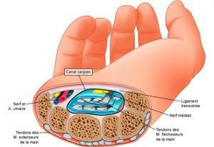 sindrome-tunel-del-carpo-1-doctor-ponce