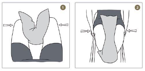 remedios contra la artrosis de rodilla