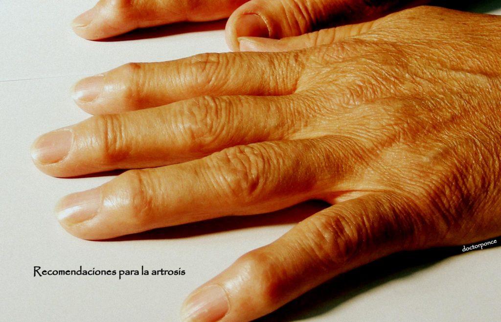 Recomendaciones generales para pacientes con artrosis cl nica reumatol gica dr ponce - Alimentos para mejorar la artrosis ...