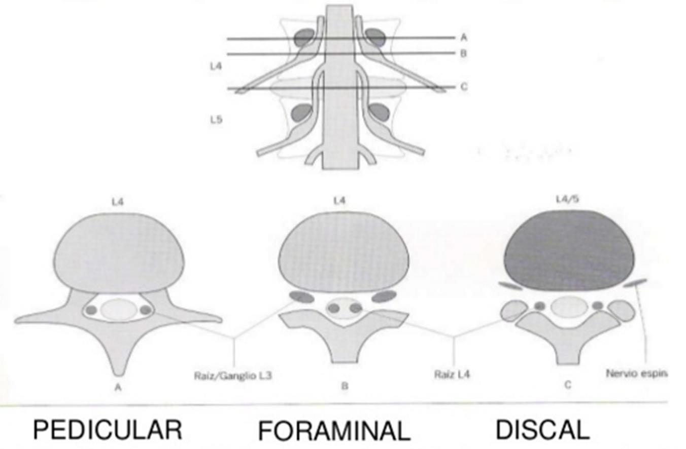 hernias discales según su nivel o altura