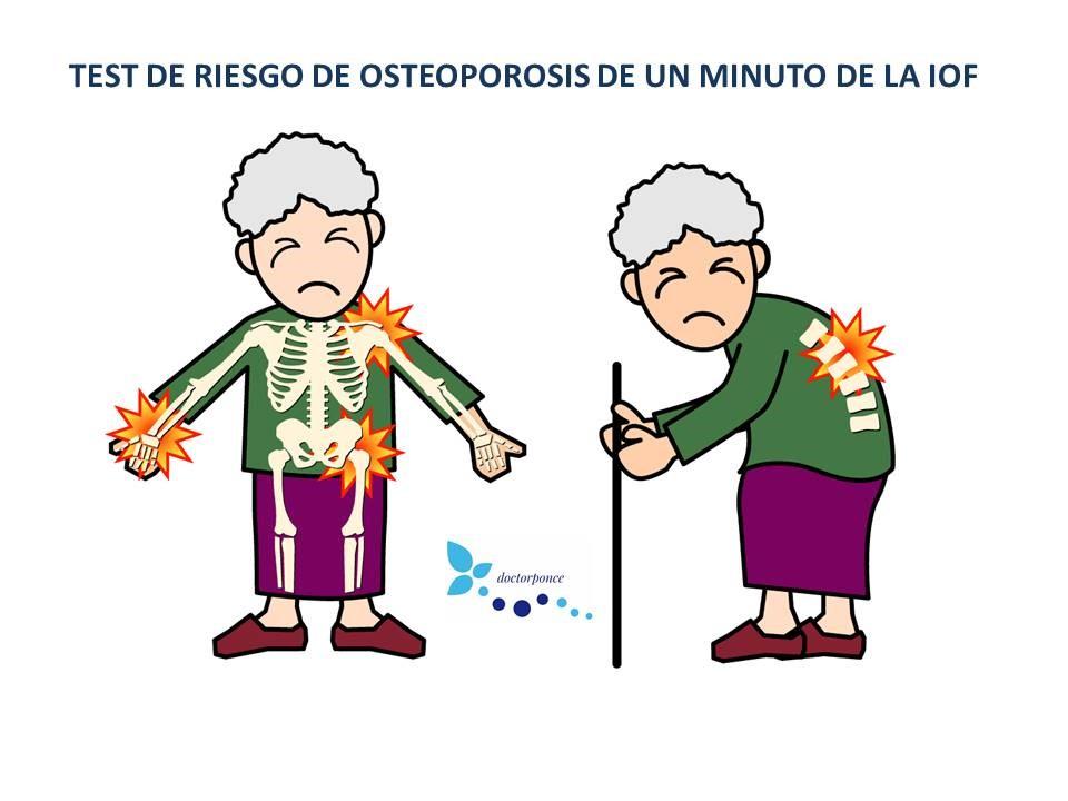 test de osteoporosis en un minuto