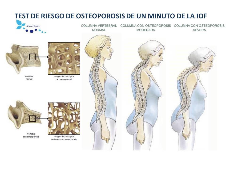 test de riesgo de osteoporosis en un minuto por la IOF