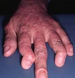 artritissoriasica2