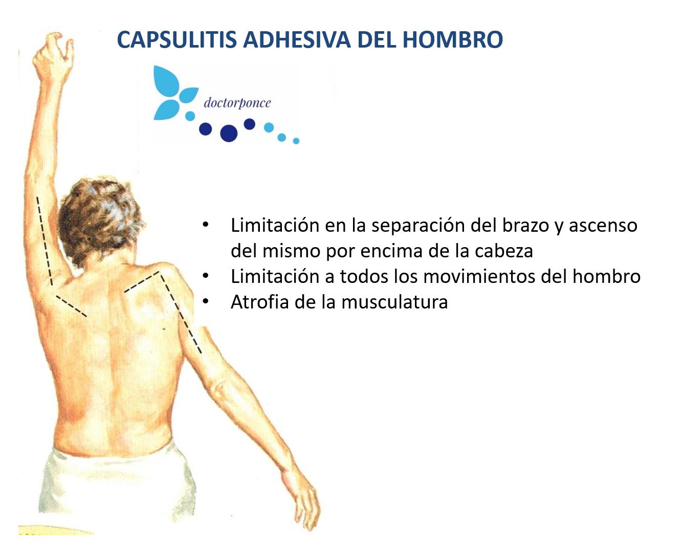 Capsulitis adhesiva del hombro