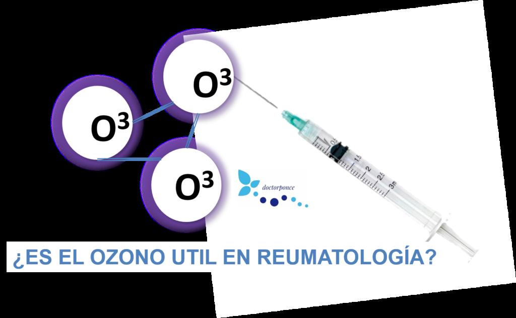 ¿Es el ozono útil en reumatología?