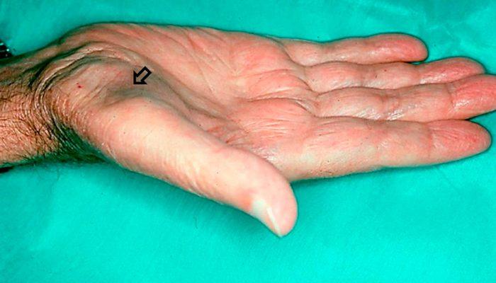 sindrome-tunel-del-carpo-2-doctor-ponce