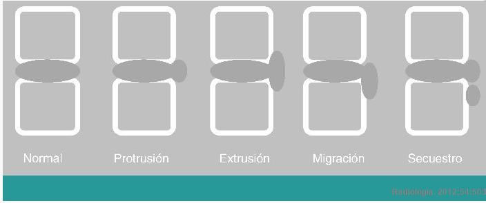Hernias discales según su morfologia