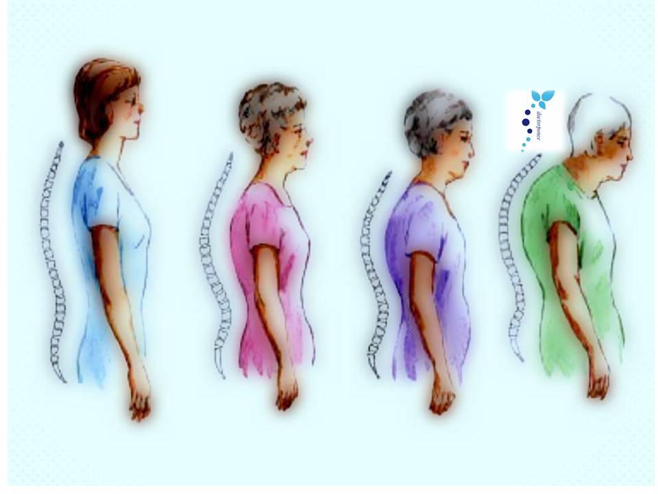 Cómo podemos identificar a los pacientes con riesgo de Fractura