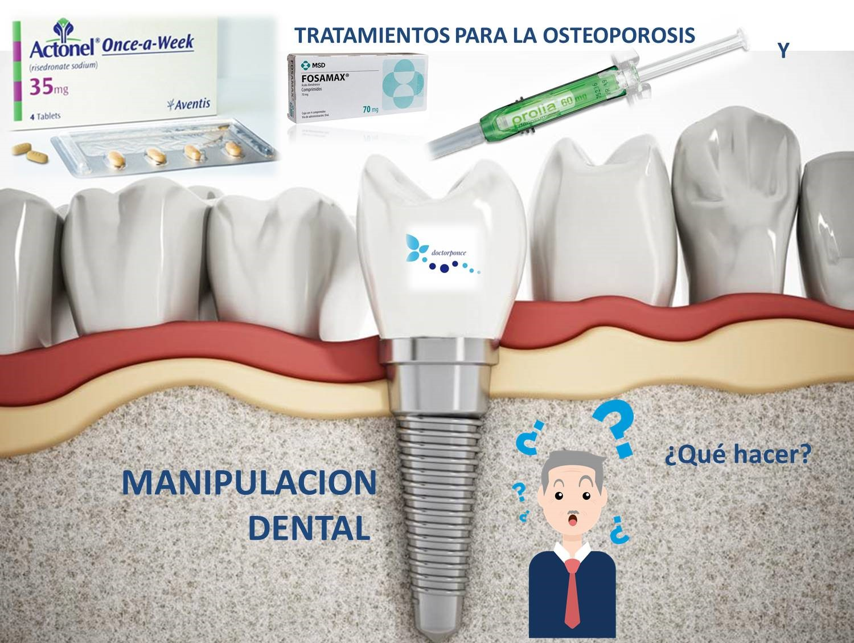 Imagen que contiene dientes,tornillo, pinchazo