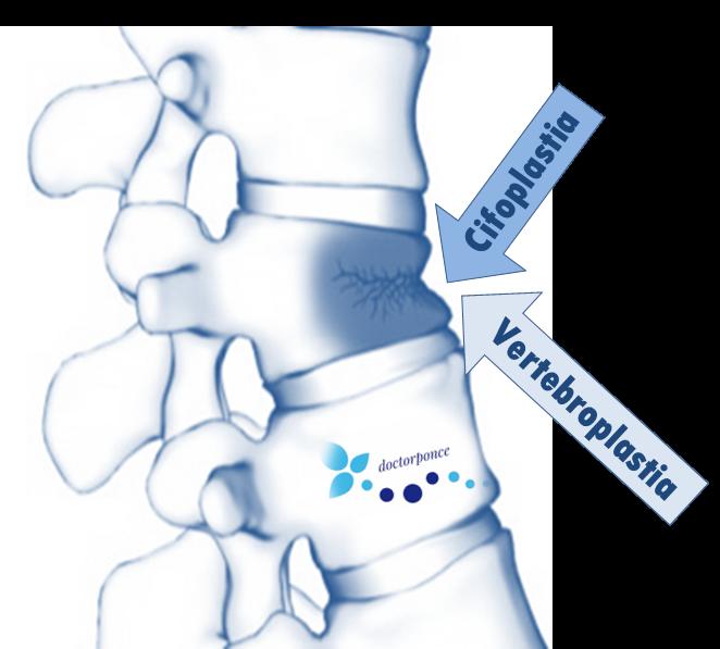 Imagen que contiene vertebras, fracturas, tonos azules