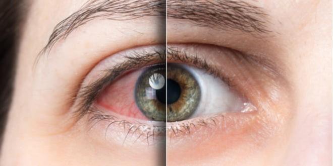Imagen que contiene, ojo, uveitis