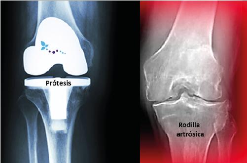 Protesis De Rodilla Cuándo Me Opero Clínica Reumatológica Dr Ponce