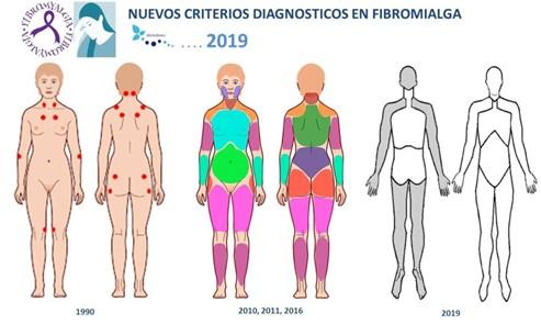 Guia para pacientes con fibromialgia