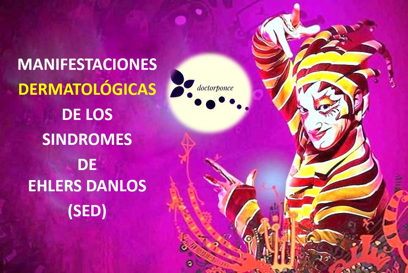 Manifestaciones dermatológicas del síndrome de Ehlers danlos
