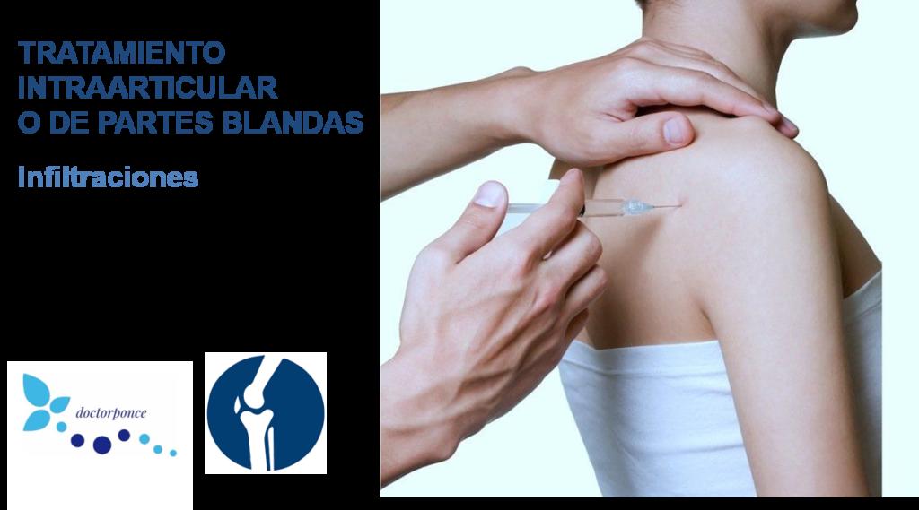 tratamiento intraarticular o de partes blandas