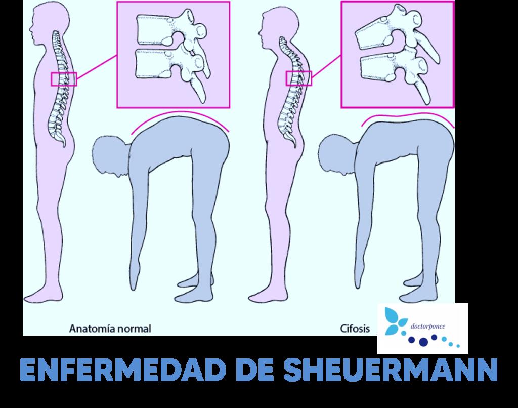 ENFERMEDAD DE SCHEUERMANN